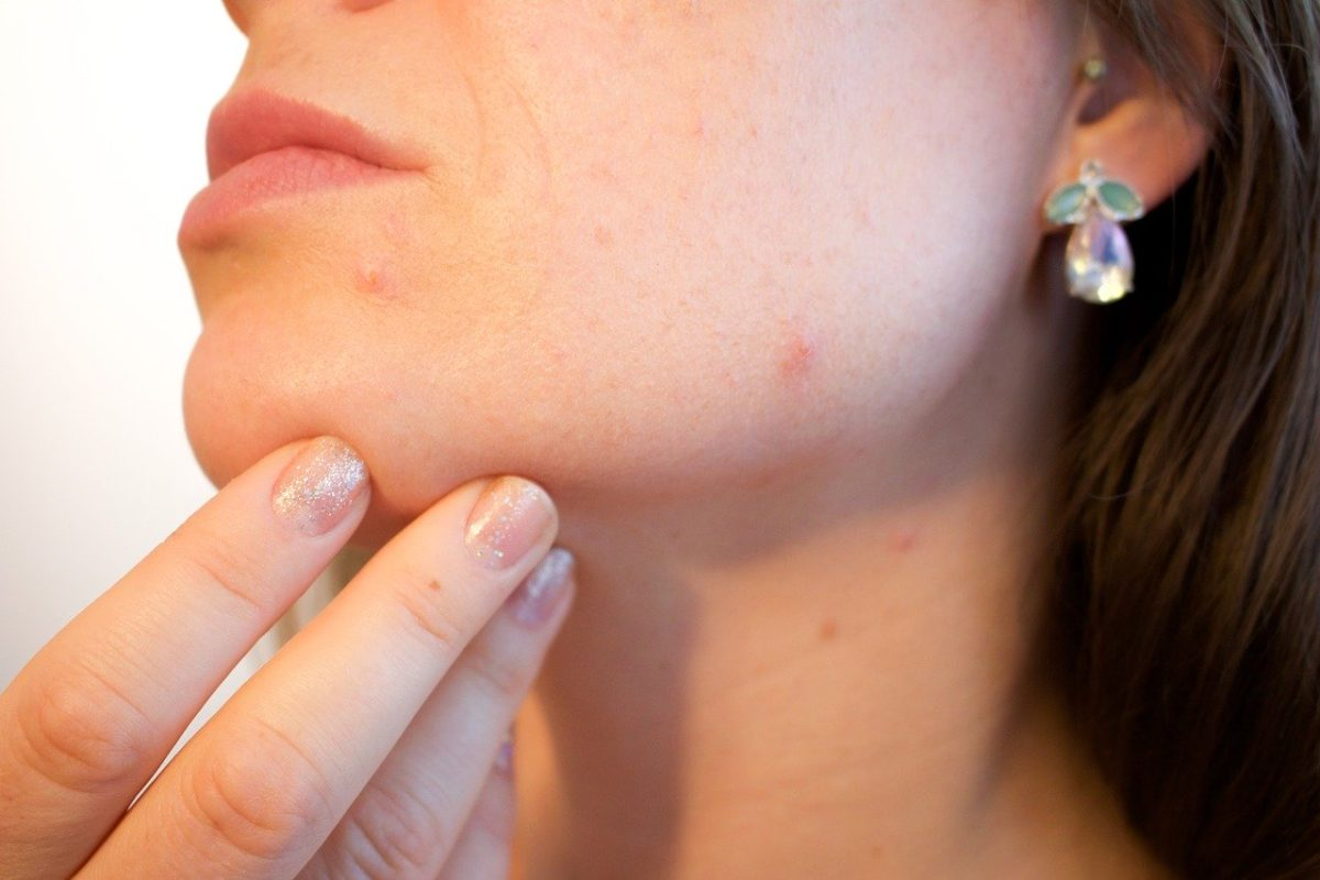 Acupuncture for acne works as well as medication