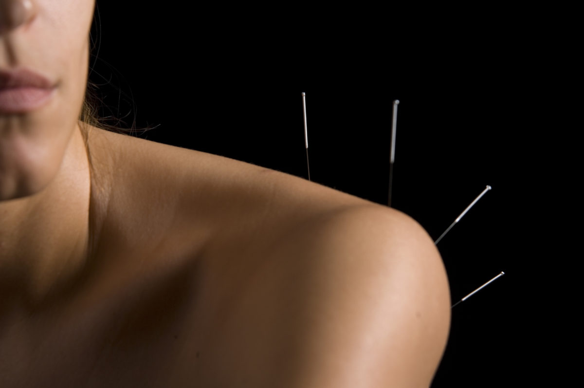 So many styles of acupuncture in Australia!